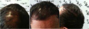 repoblación en cabello hombre