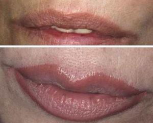 dermopigmentacion-cejas-labios-tatoo-maquillaje-permanente-428405-MLA25010906338_082016-O