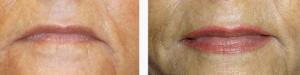 logia-barcelona-micropigmentación-labios-3
