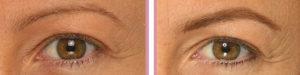 ojos001